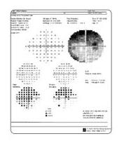 293a5b7286 Με το μηχάνημα των οπτικών πεδίων χαρτογραφείται συστηματικά το οπτικό πεδίο  κάθε οφθαλμού με τον έλεγχο της ευαισθησίας του αμφιβληστροειδή σε μεγάλο